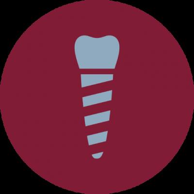 sosdentiste_implantologie