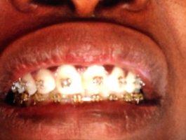 Orthodontie SOS DENTISTE SENEGAL aprés