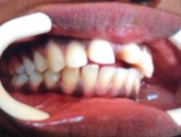 Orthodontie SOS DENTISTE SENEGAL avant